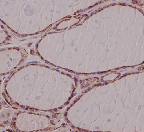 Immunohistochemistry (Formalin/PFA-fixed paraffin-embedded sections) - Anti-robld3 antibody [EPR14378] (ab183514)