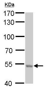 Western blot - Anti-RNPEPL1 antibody (ab183761)