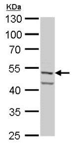 Western blot - Anti-Fascin antibody (ab183891)