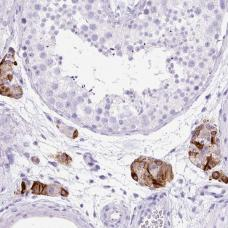 Immunohistochemistry (Paraffin-embedded sections) - Anti-STOX2 antibody (ab185112)