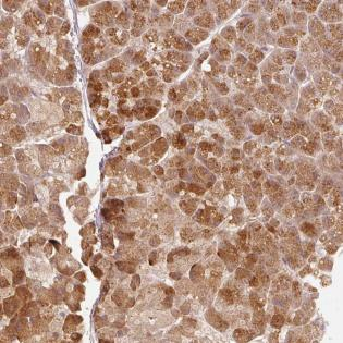 Immunohistochemistry (Formalin/PFA-fixed paraffin-embedded sections) - Anti-RGL2 antibody (ab185284)