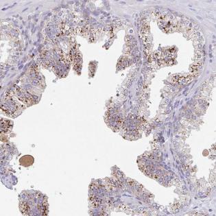 Immunohistochemistry (Formalin/PFA-fixed paraffin-embedded sections) - Anti-MANBA antibody (ab185288)