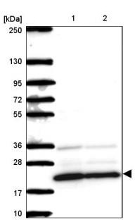 Western blot - Anti-Mimitin antibody (ab185374)