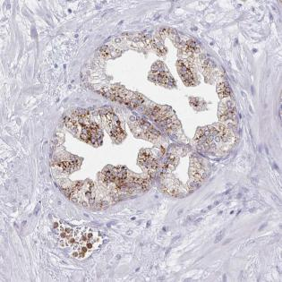 Immunohistochemistry (Formalin/PFA-fixed paraffin-embedded sections) - Anti-ACTR3C antibody (ab185499)
