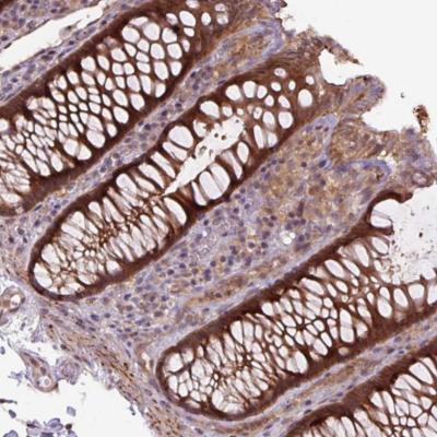 Immunohistochemistry (Formalin/PFA-fixed paraffin-embedded sections) - Anti-ZSWIM7 antibody (ab185506)
