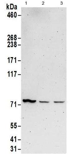 Western blot - Anti-KIAA0859  antibody (ab186017)