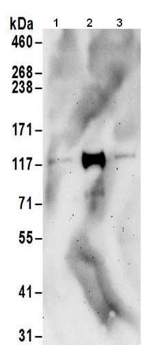 Western blot - Anti-TTLL4 antibody - C-terminal (ab186045)