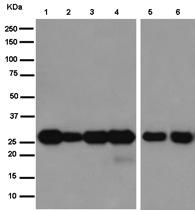 Western blot - Anti-QDPR [EP12595] antibody (ab186411)