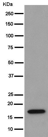 Western blot - Anti-REEP5 [EP11115] antibody (ab186755)