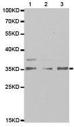 Western blot - Rabbit Polyclonal to HUS1 (ab186850)