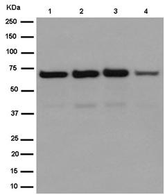 Western blot - Anti-IL9R [EPR15730] antibody (ab187141)