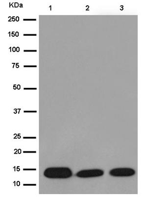 Western blot - Anti-C10orf35 [EPR14950] antibody (ab187150)