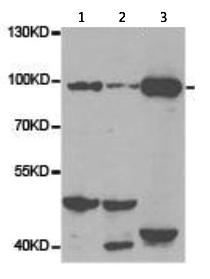 Western blot - Anti-VAP1 antibody (ab187202)