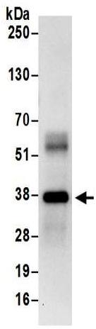 Immunoprecipitation - Anti-Transaldolase 1 antibody (ab187689)