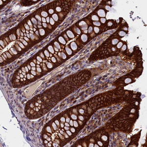 Immunohistochemistry (Formalin/PFA-fixed paraffin-embedded sections) - Anti-DENND1B antibody (ab187903)