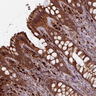 Immunohistochemistry (Formalin/PFA-fixed paraffin-embedded sections) - Anti-CCDC68  antibody - N-terminal (ab188021)