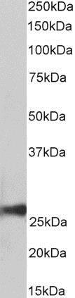 Western blot - Anti-Peroxiredoxin 6 antibody (ab188110)