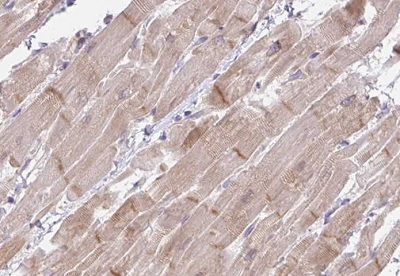 Immunohistochemistry (Formalin/PFA-fixed paraffin-embedded sections) - Anti-FILIP1 antibody (ab188157)