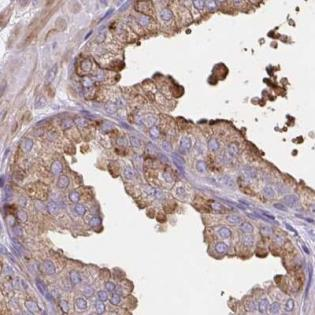 Immunohistochemistry (Formalin/PFA-fixed paraffin-embedded sections) - Anti-CDRT15 antibody (ab188307)