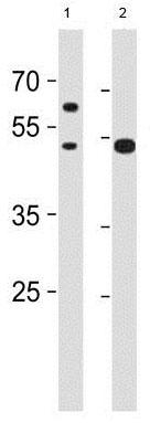 Western blot - Anti-SLC25A25 antibody - N-terminal (ab188349)