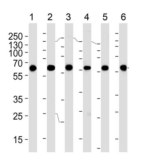 Western blot - Anti-BBS4 [1292CT845130218] antibody (ab188364)