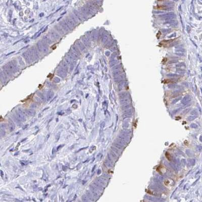 Immunohistochemistry (Formalin/PFA-fixed paraffin-embedded sections) - Anti-PINLYP antibody - C-terminal (ab188537)