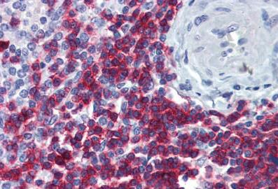 Immunohistochemistry (Formalin/PFA-fixed paraffin-embedded sections) - Anti-CD3 zeta [4A12-F6] antibody (ab188850)