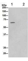 Immunoprecipitation - Anti-PGM1 [EPR15240] antibody (ab188869)