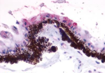 Immunohistochemistry (Formalin/PFA-fixed paraffin-embedded sections) - Anti-RGR antibody (ab188904)