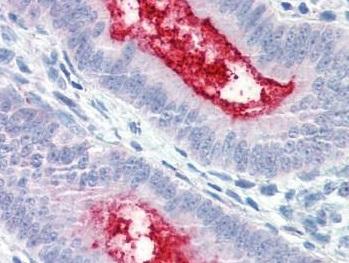 Immunohistochemistry (Formalin/PFA-fixed paraffin-embedded sections) - Anti-ENPP3 antibody (ab189116)
