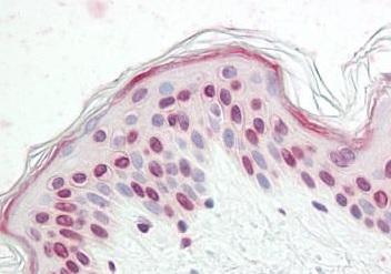 Immunohistochemistry (Formalin/PFA-fixed paraffin-embedded sections) - Anti-Nkx2.4 antibody (ab189202)
