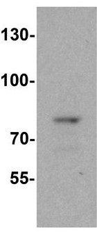 Western blot - Anti-C11orf2 antibody - C-terminal (ab189213)