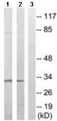 Western blot - Anti-SLC25A6 antibody (ab189280)