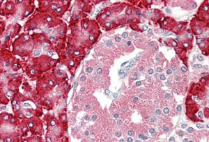 Immunohistochemistry (Formalin/PFA-fixed paraffin-embedded sections) - Anti-PDI antibody (ab189368)