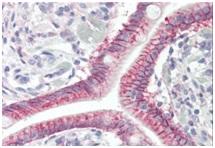 Immunohistochemistry (Formalin/PFA-fixed paraffin-embedded sections) - Anti-GPCR GPR52 antibody (ab189404)