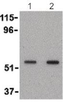 Western blot - Anti-SnoN antibody - N-terminal (ab189653)