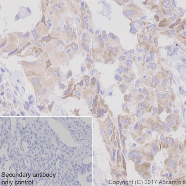 Immunohistochemistry (Formalin/PFA-fixed paraffin-embedded sections) - Anti-ROS1 antibody [EPMGHR2] (ab189925)