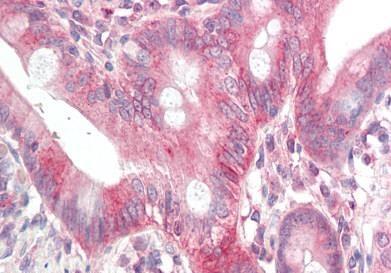 Immunohistochemistry (Formalin/PFA-fixed paraffin-embedded sections) - Anti-GDF1 antibody - N-terminal (ab189950)