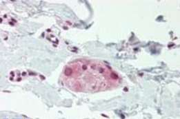 Immunohistochemistry (Formalin/PFA-fixed paraffin-embedded sections) - Anti-WRCH1 antibody (ab189951)