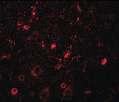 Immunohistochemistry (Formalin/PFA-fixed paraffin-embedded sections) - Anti-SGSM1 antibody (ab189964)