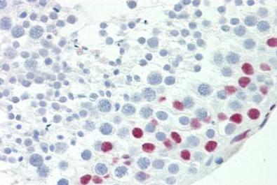 Immunohistochemistry (Formalin/PFA-fixed paraffin-embedded sections) - Anti-TCEAL3 antibody - N-terminal (ab189978)