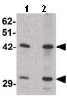 Western blot - Anti-SEC62 antibody - C-terminal (ab189984)
