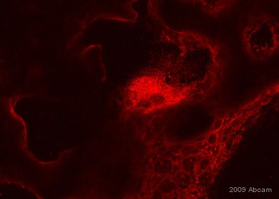 Immunohistochemistry (Frozen sections) - Anti-Cathepsin K antibody (ab19027)