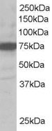 Western blot - Anti-USH1C antibody (ab19045)