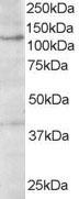 Western blot - Anti-HPS3 antibody (ab19047)
