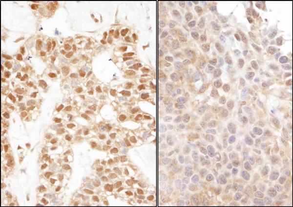 Immunohistochemistry (Formalin/PFA-fixed paraffin-embedded sections) - Anti-Ubiquitin antibody (ab19168)