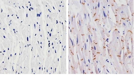 Immunohistochemistry (Formalin/PFA-fixed paraffin-embedded sections) - Anti-N Cadherin antibody [8C11] (ab19348)