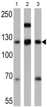 Western blot - Anti-P cadherin antibody [6A9] (ab19350)