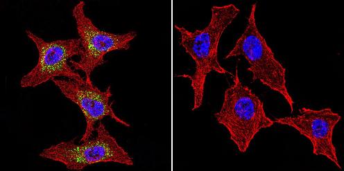 Immunocytochemistry/ Immunofluorescence - Anti-P cadherin antibody [6A9] (ab19350)