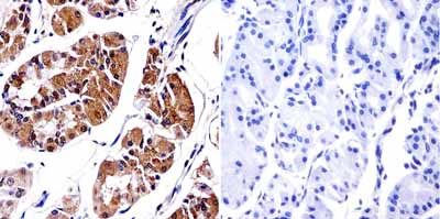 Immunohistochemistry (Formalin/PFA-fixed paraffin-embedded sections) - Anti-PDX1 antibody (ab19385)